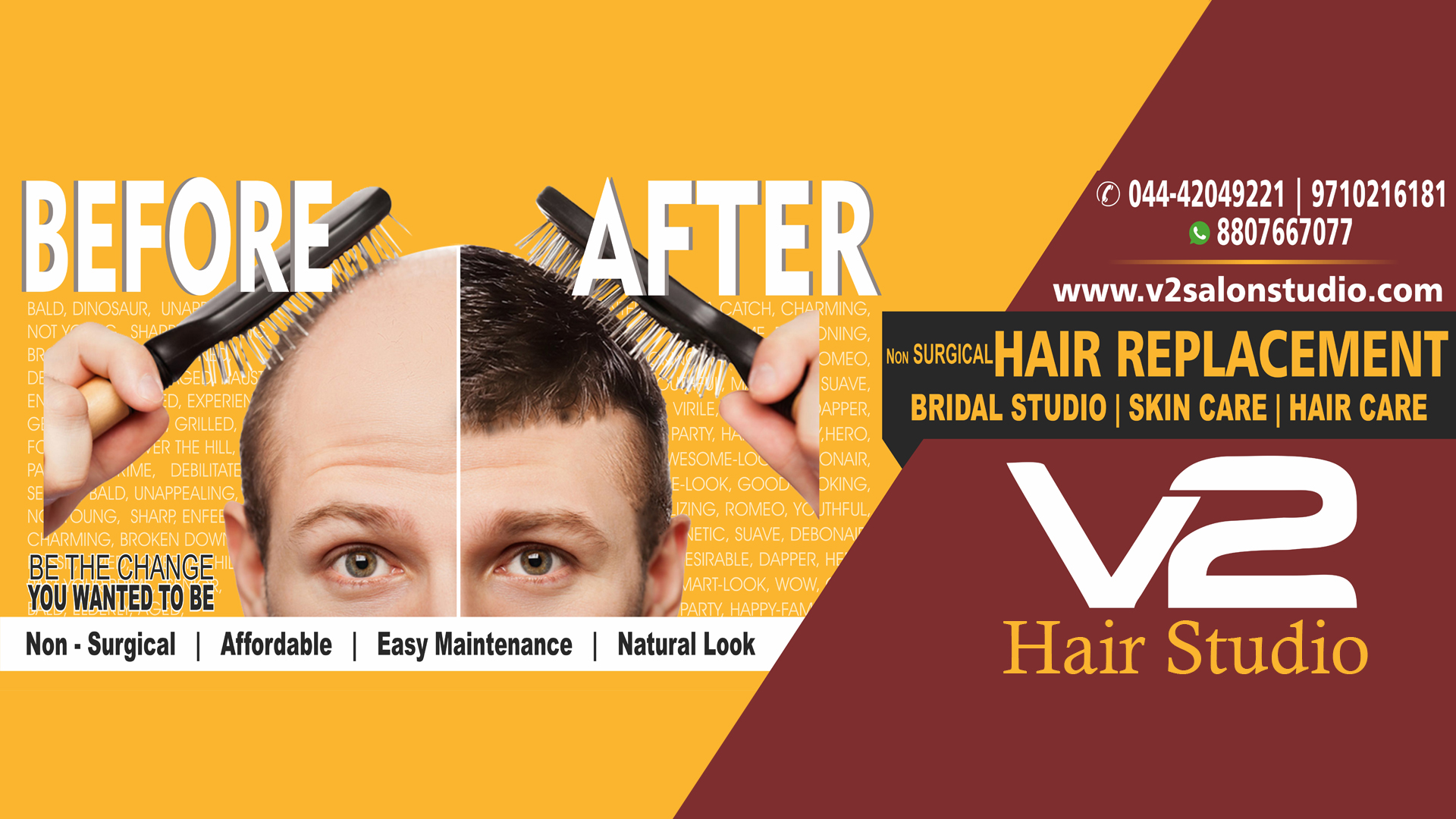 Hair Replacement Just Rs 11999 No Surgery